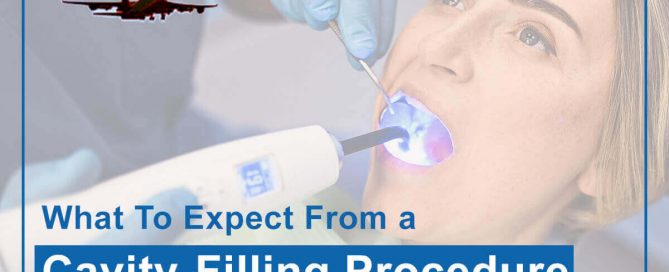 What To Expect From A Cavity Filling Procedure Featured Image