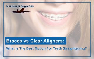 Braces vs Clear Aligners: What Is The Best Option For Teeth Straightening?