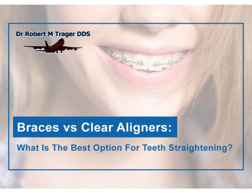 Braces Vs. Clear Aligners: What Is The Best Option for Teeth Straightening?
