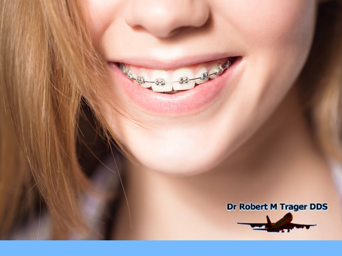 A Girl Getting The Perfect Smile With Braces In New York