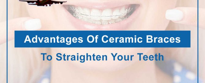 Advantages Of Ceramic Braces To Straighten Your Teeth