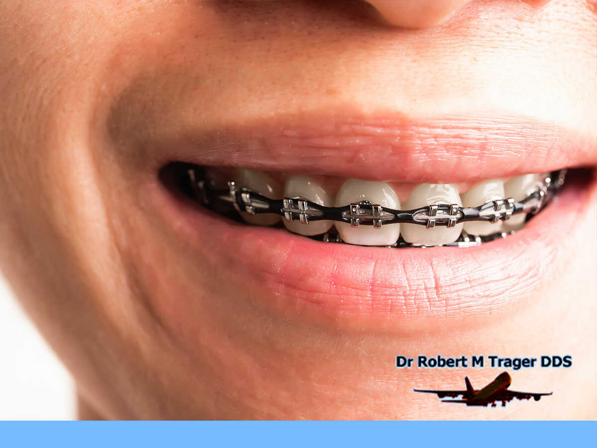 What Are The Different Types Of Braces In Queens, NY