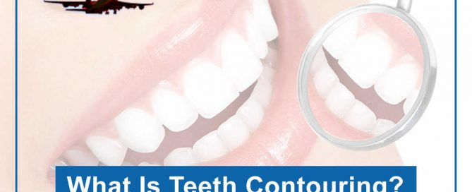 What Is Teeth Contouring?